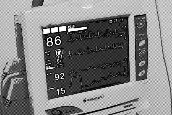 病院のモニター